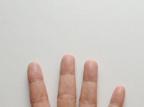 指先が痛い原因は?病気なの?腫れる場合は?病院は何科に行けばいい?