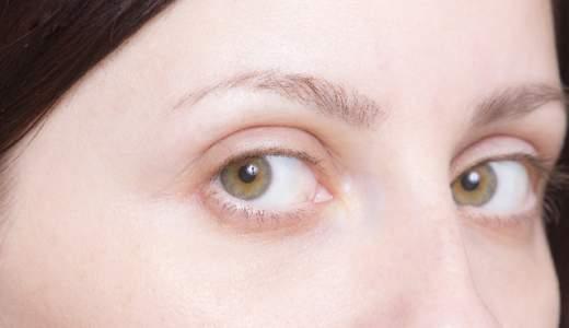 脇見恐怖症とは?原因と症状は?治療し克服する方法はあるの?