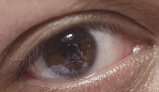 白目がぶよぶよし水ぶくれのゼリー状になる原因は?対処法についても!